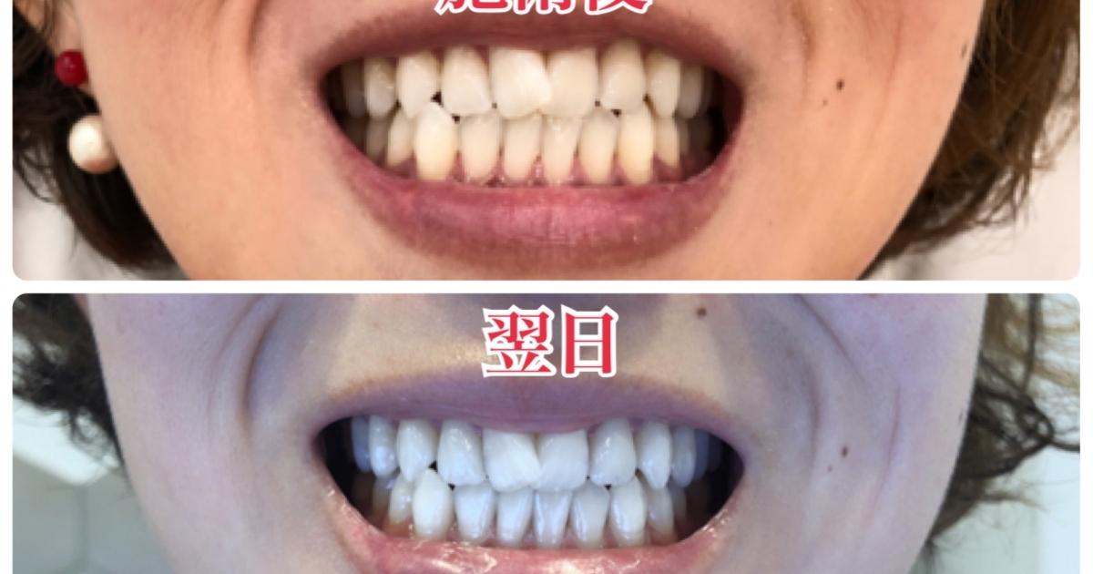 外科 ホワイトニング 美容 湘南 ホワイトニング :