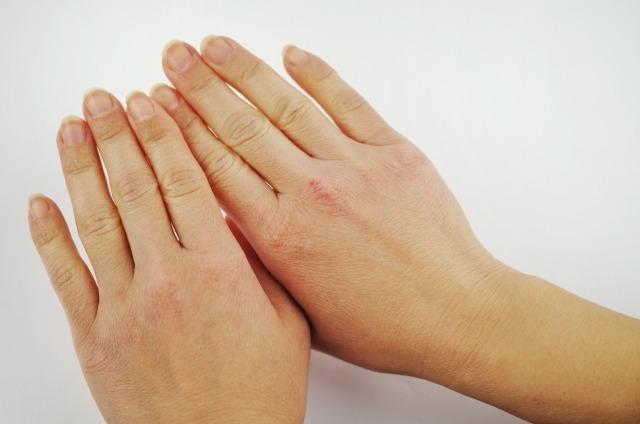 ①手を美しく見せることができる