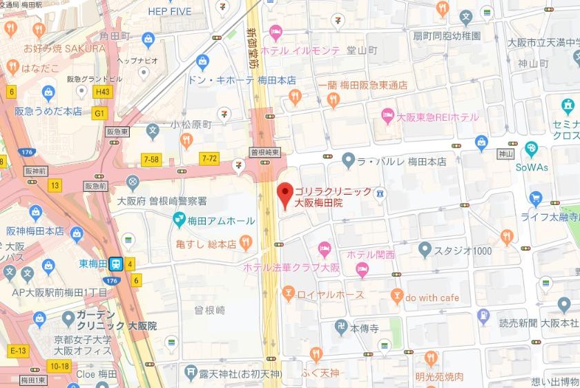 ゴリラクリニック 大阪梅田院