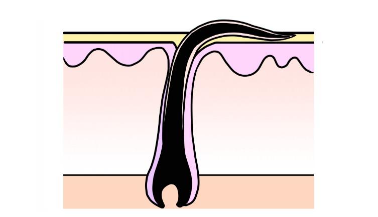 毛穴が黒く目立つのは埋没毛の可能性も