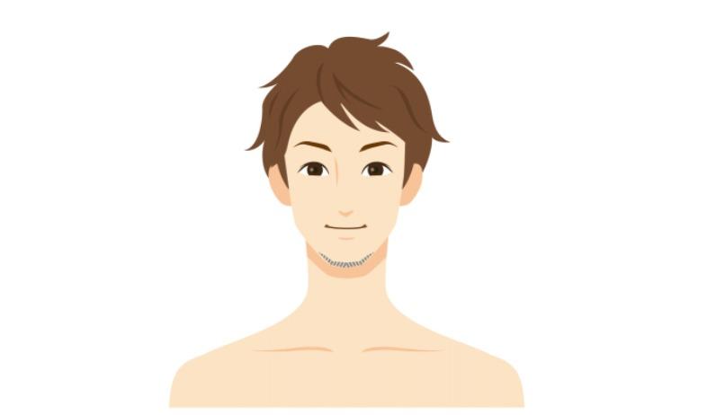 ⑤顎下のみスタイル