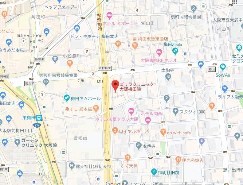 ゴリラクリニック大阪梅田院