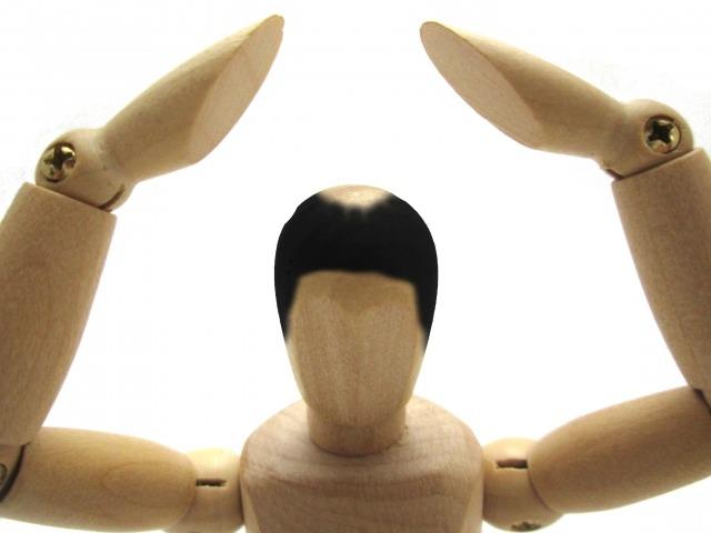 3.頭部の毛が薄め