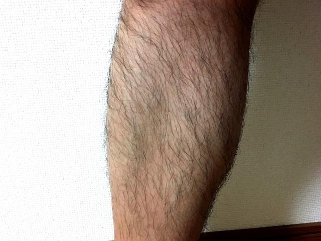 男のすね毛を薄くするにはどうすれば良い?