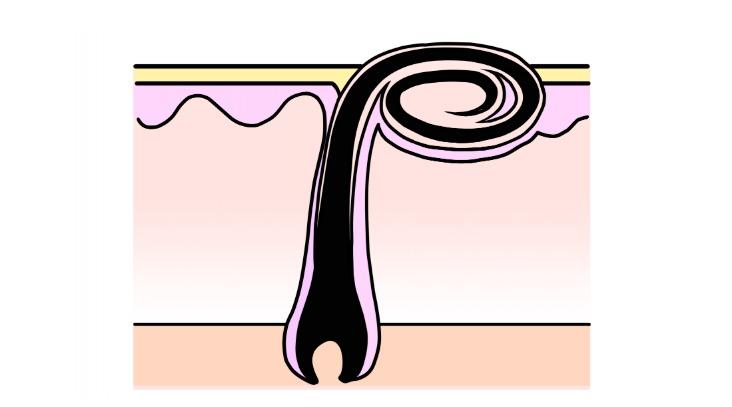埋没毛や毛嚢炎の危険