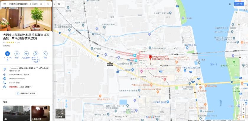大西皮フ科形成外科医院 滋賀大津石山医院 Googleマップ