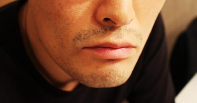 髭への光脱毛の効果