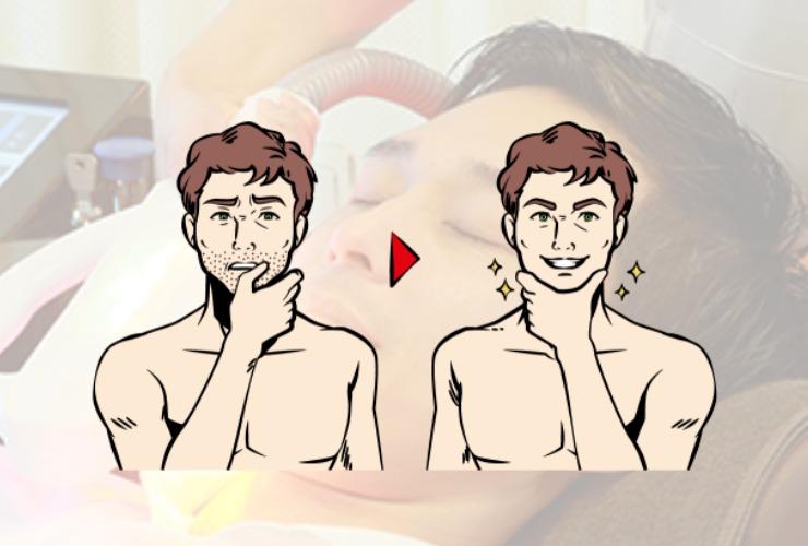 【ビフォーアフター】ヒゲ脱毛後の状況