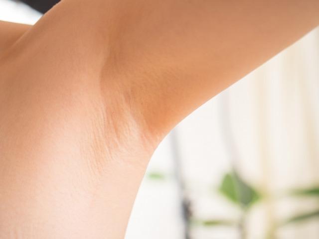 ワキガの臭いは脱毛で軽減できるかを解説