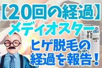 【20回の経過】メディオスターのヒゲ脱毛の経過を報告!
