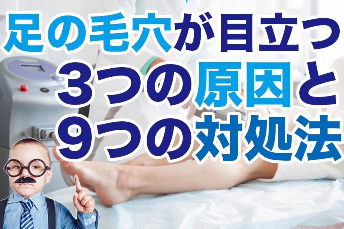 足の毛穴が目立つ3つの原因と9つの対処法