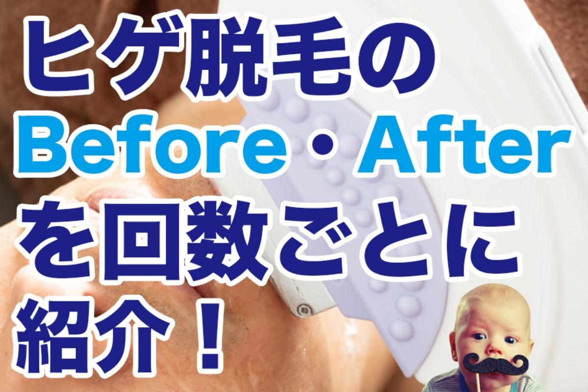 【写真付き】ヒゲ脱毛での変化とは?ビフォーアフター徹底解説