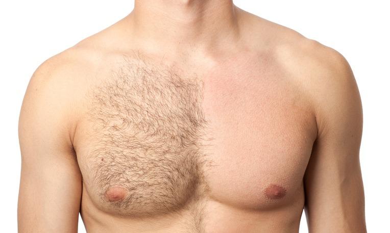 男性ホルモンと遺伝の影響