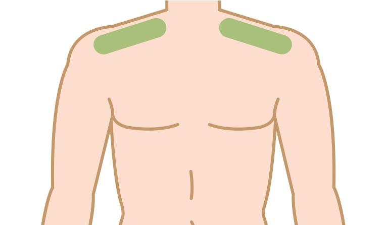 肩毛が生える3つの原因