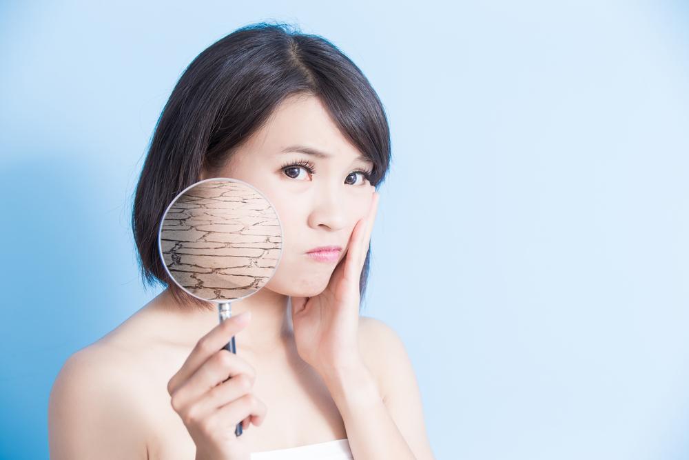 頬の乾燥に悩む女性