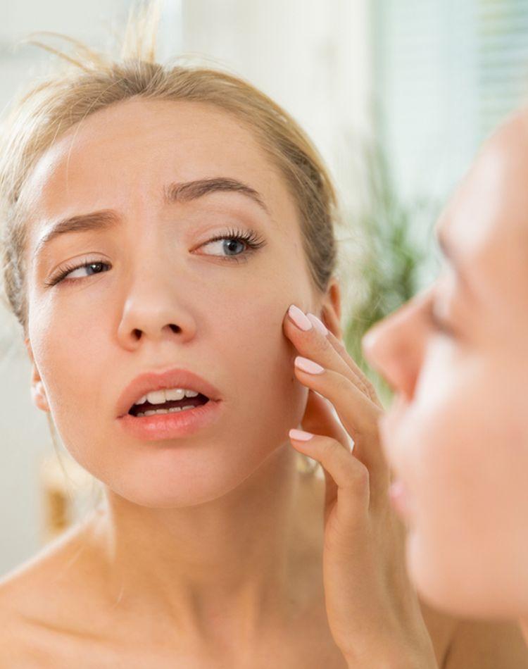 肌荒れの原因は?ニキビや吹き出物の治し方をご紹介