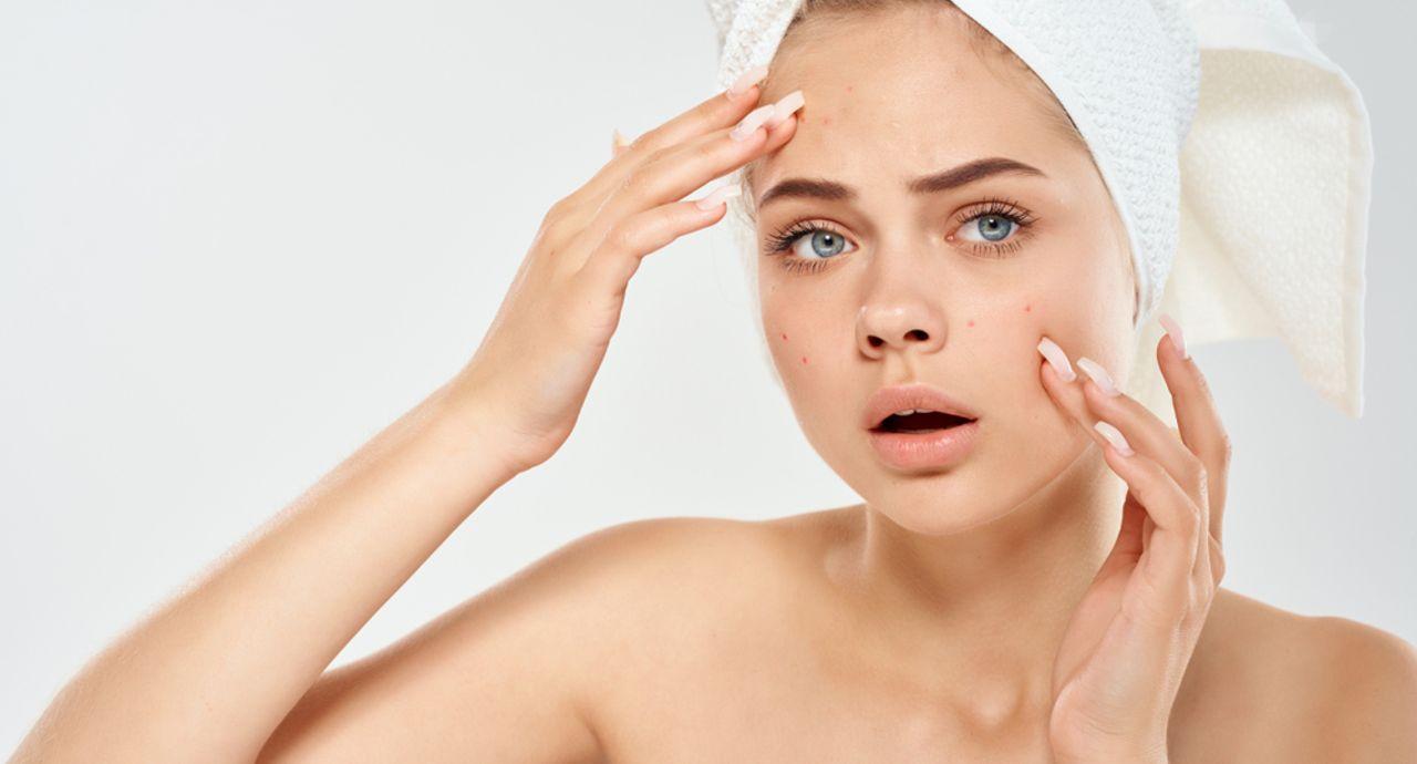ニキビ跡にぴったりな化粧水とは?肌に優しくスキンケアする方法