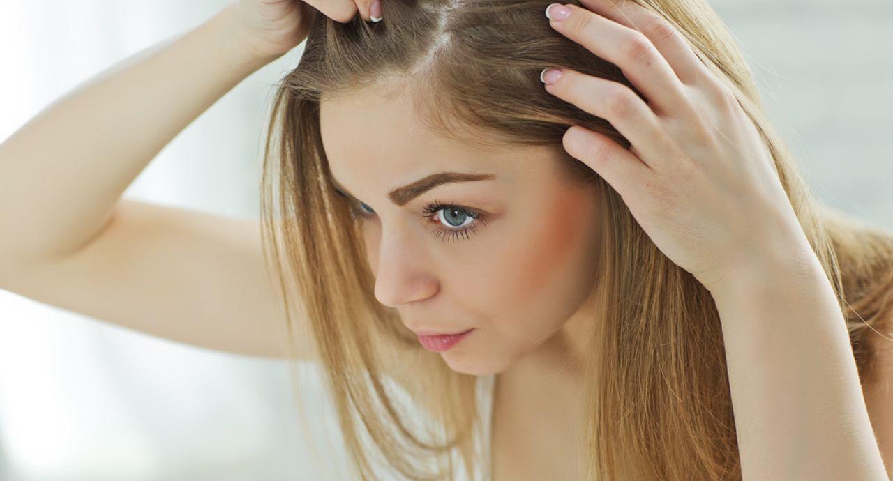 髪の分け目が薄い原因は?改善策や上手な隠し方をご紹介