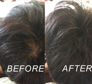 MOTISS 魔髮粉 頭頂些微稀疏 使用前後對比